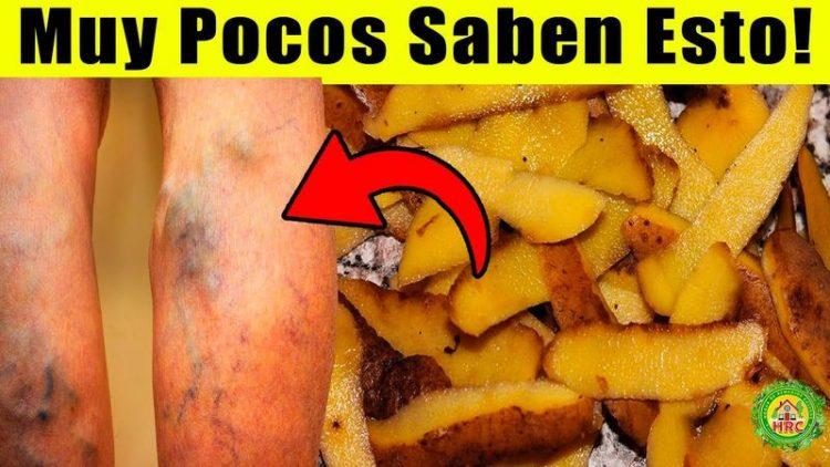 cascara patata